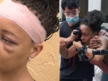 Florida Officer Cleared After Shooting Protestor LaToya Ratlieff In The Eye With Rubber Bullet