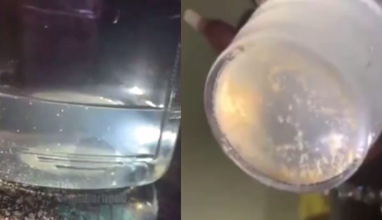 Texas Woman Posted a Video Shows Parasites Swimming In Tap Water